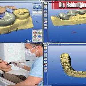 Diş Hekimliğinde Cad/Cam Teknolojisi